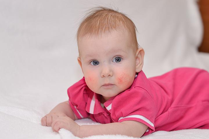 Food Intolerances (Food Allergies) And Newborn Infants