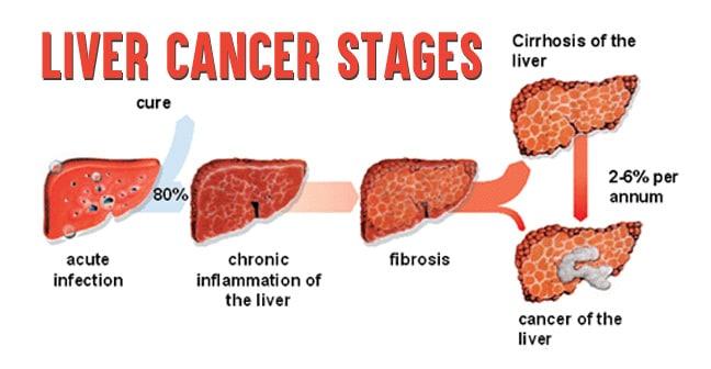 liver-cancer-stages-1
